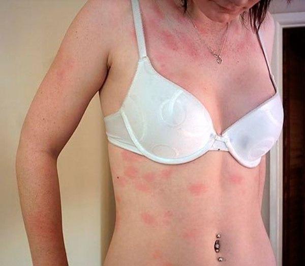 аллергия на крапиву симптомы лечение