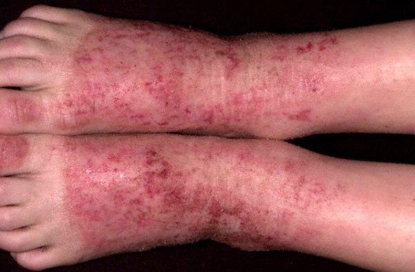 Kak-lechit-dermatit-na-nogah-3