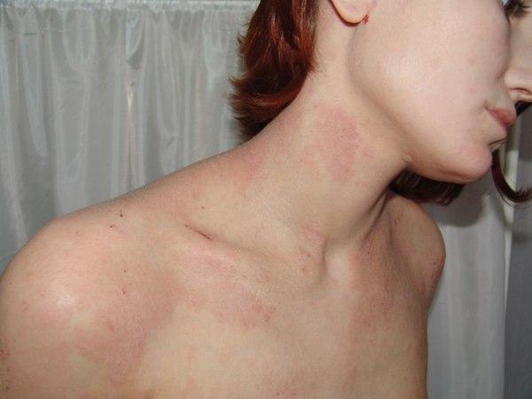 Пищевая аллергия: симптомы и лечение