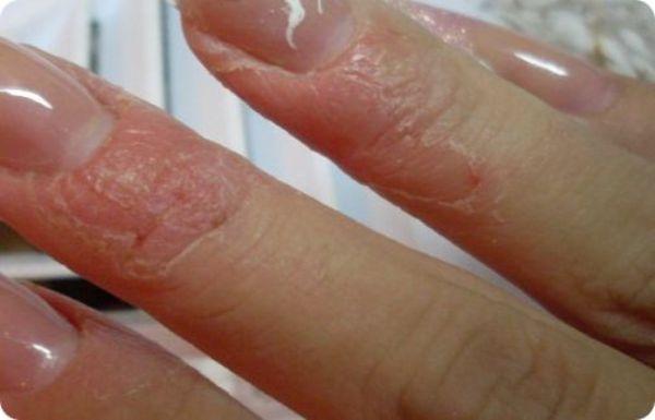 Аллергия на нарощенные ногти