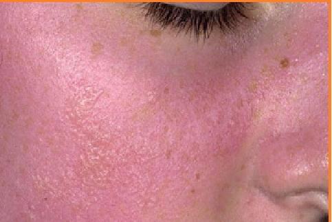 бывает ли аллергия на холод