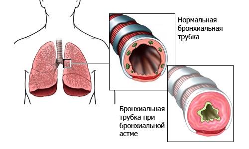 аллергическая бронхиальная астма симптомы лечение