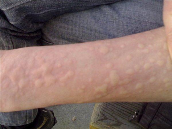 К аллергическим реакциям немедленного типа относятся