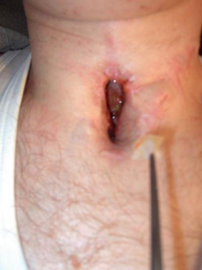 симптомы аллергического отека гортани