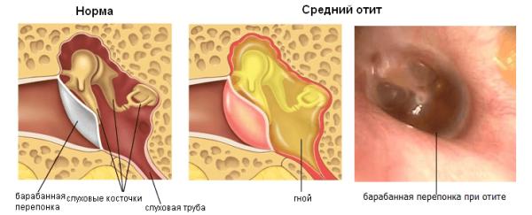 аллергический отит