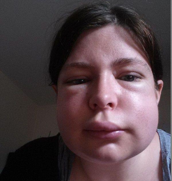 Аллергия на ананас симптомы