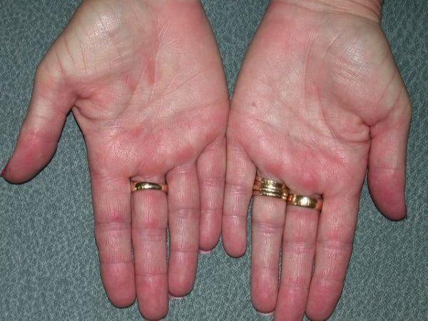 аллергия на чеснок у ребенка