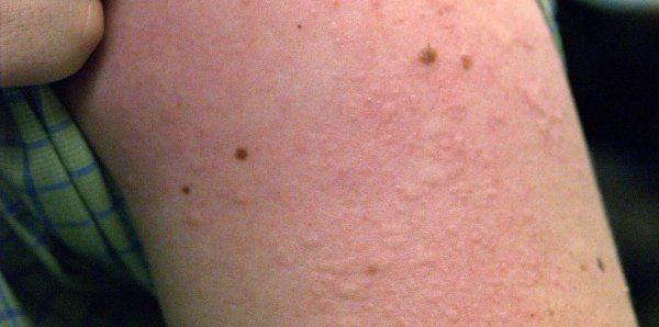 аллергия на коже причины