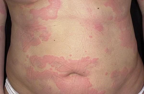 аллергия от лекарства что делать
