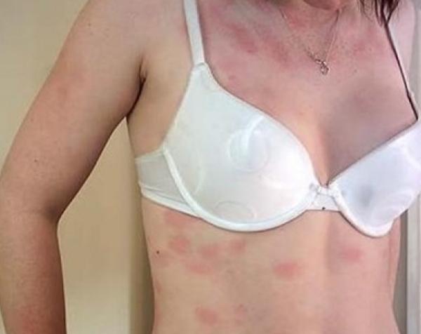 аллергия на половых органах мальчика