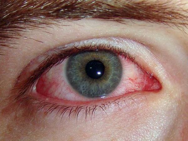 аллергия в марте