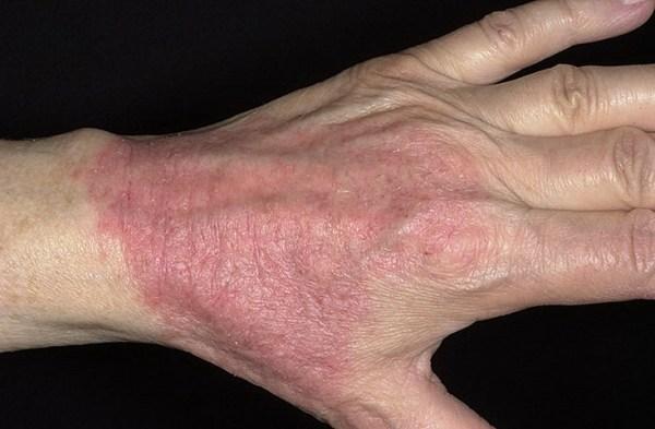 атопический дерматит вылечить полностью