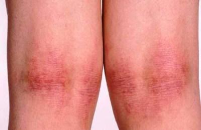 Как лечить кожную аллергию