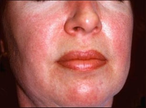 аллергия на голове у женщин