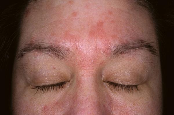 dermatit-na-lice-3