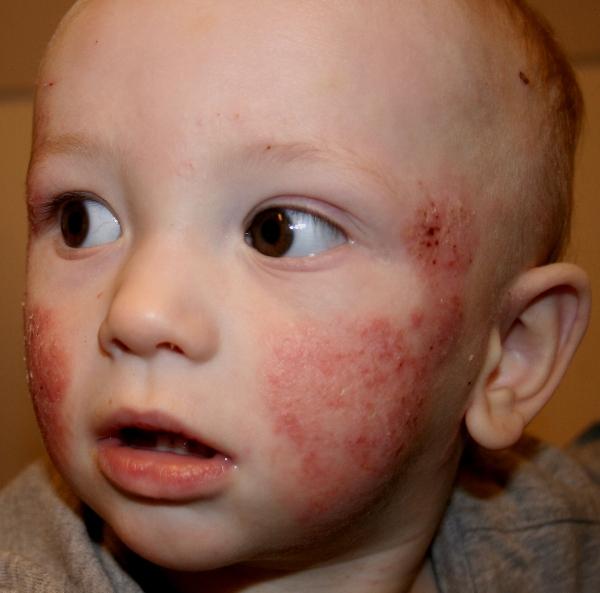 симптомы детского дерматита