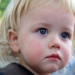 Диатез у ребенка: лечение и симптомы