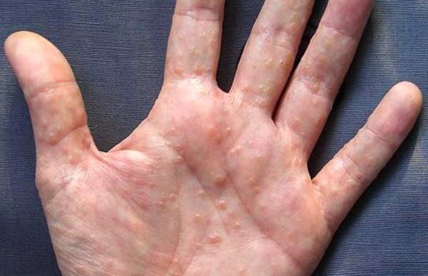 аллергия на коже рук красные пятна