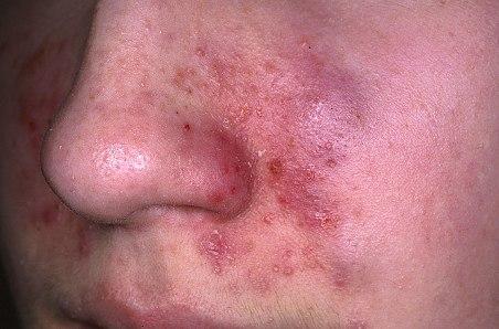 Экзема на лице: секреты лечения