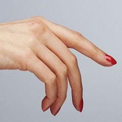 Лечение экземы на руках и ее основные причины