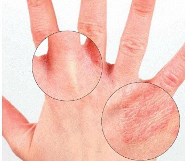 лечение экземы на руках