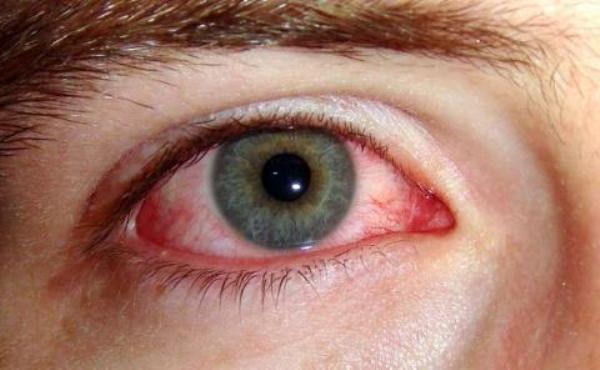 глазная аллергия помощь