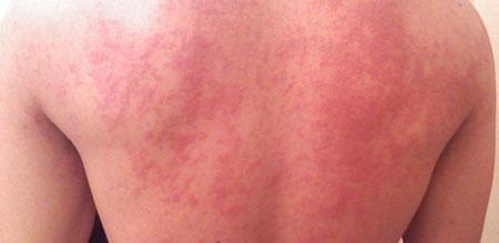 Сыпь - распространенное проявление аллергии