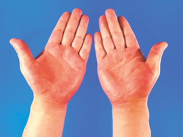 причины инфекционного дерматита