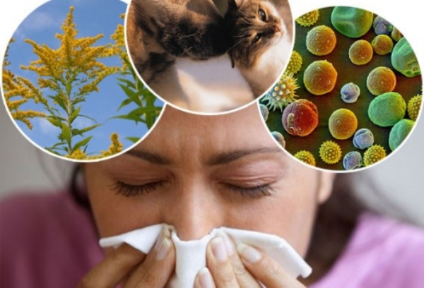 как лечить аллергию