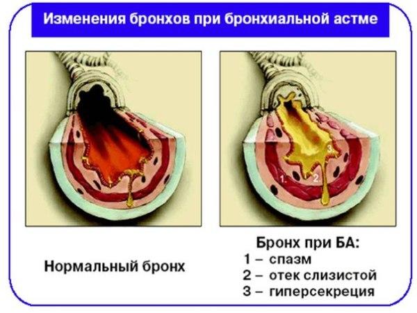 как проявляется астма
