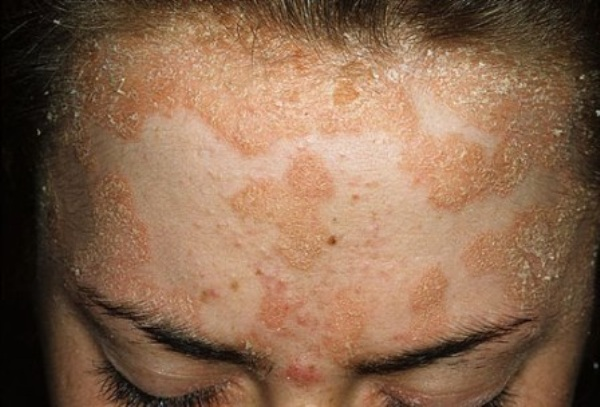 symptoms of psoriasis on face