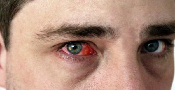 аллергия на комнатные растения