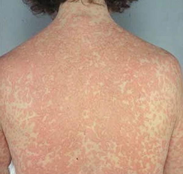 кожный мастоцитоз