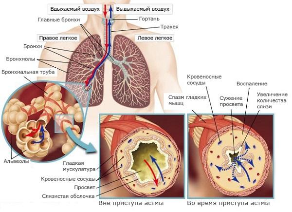 цвет мокроты при бронхиальной астме