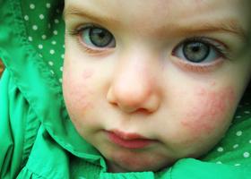аллергия на мороз у детей