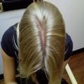 Нейродермит на голове