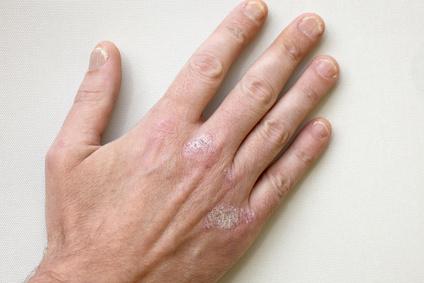 Нейродермит на руках
