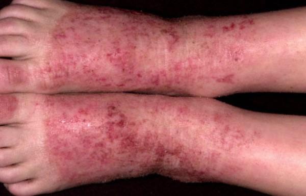 нейродермит на ногах лечение