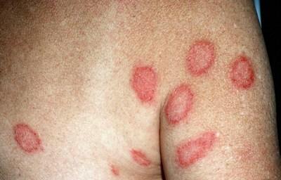 Энтеросгель атопический дерматит лактофильтрум