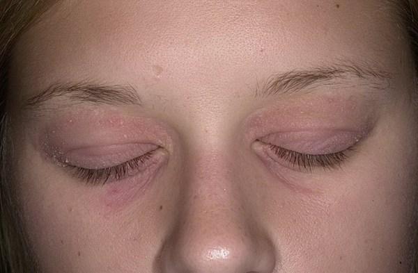 периорбитальный дерматит
