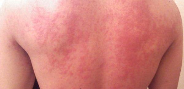 первая помощь при аллергических реакциях