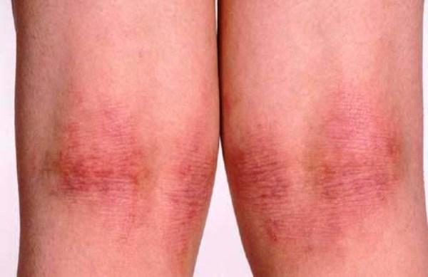 атопический дерматит причины