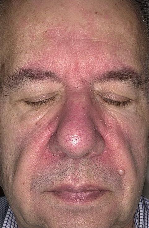 priznaki-seborejnogo-dermatita-3