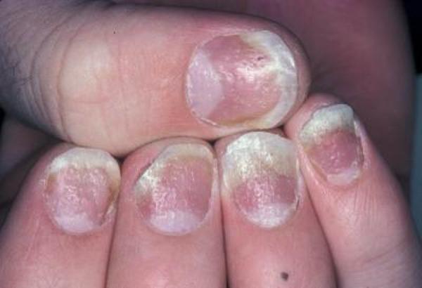 Признаки начальной стадии псориаза рук