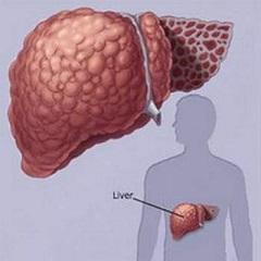 Псориаз и болезни печени