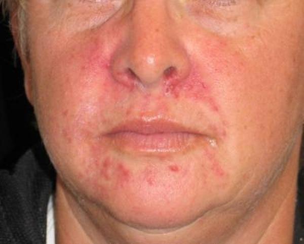 псориаз на лице симптомы лечение