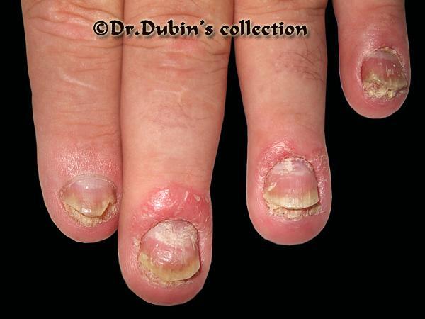 Псориаз ногтя лечение в домашних условиях