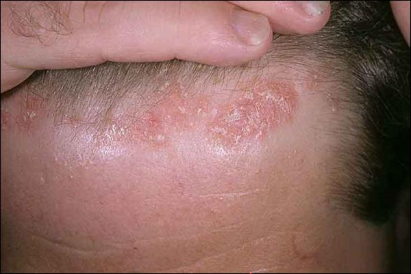 есть ли аллергия на малину