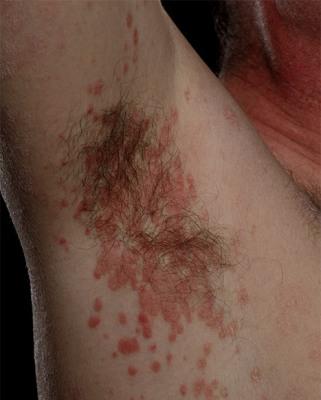 kakie-eshe-bolezni-pohozhi-na-psoriaz