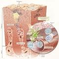 Причины возникновения псориаза